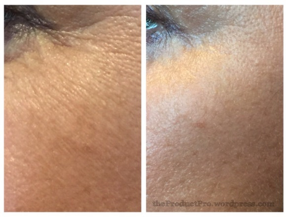 SkinMedica HA5 Rejuvenating Hydrator Serum product review before and after photos by Elizabeth Weiler theproductpro.wordpress.com